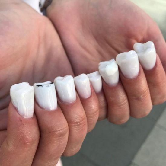 Странный маникюр в виде зубов