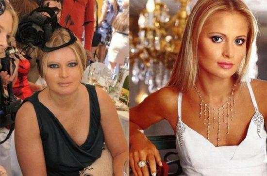 Дана Борисова до и после похудения