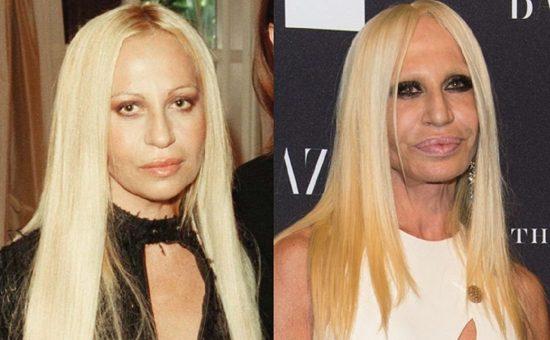 Донателла Версаче: фото до и после