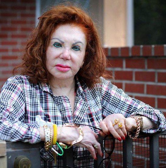 Жаклин Сталлоне — известная жертва пластической хирургии