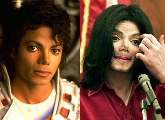 Майкл Джексон: фото до и после пластики